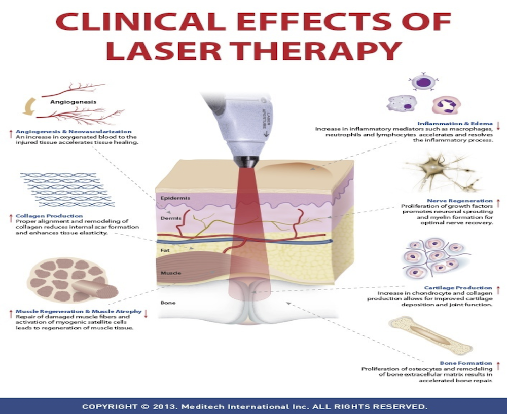 Low Energy Laser Therapy